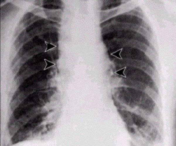 Inhalational anthrax