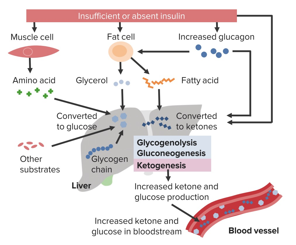 Insufficient or absent insulin