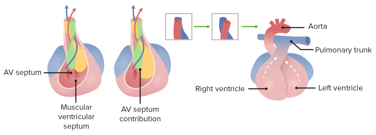 Interventricular septum