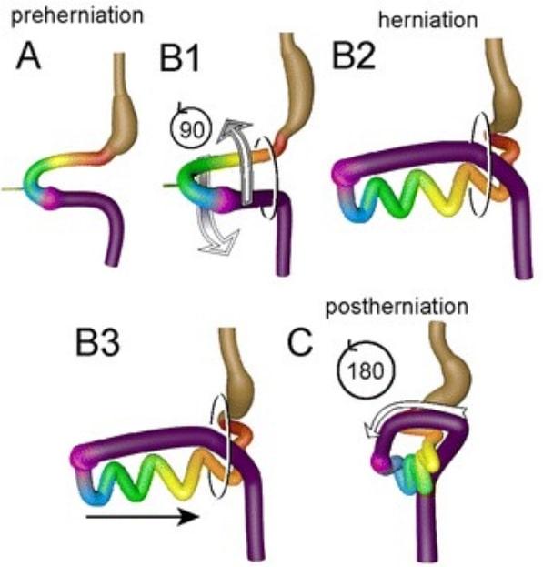Intestinal rotation and herniation