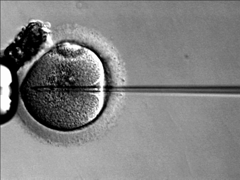 Intracytoplastic sperm injection IVF