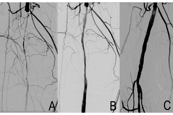 Intraoperative angiogram