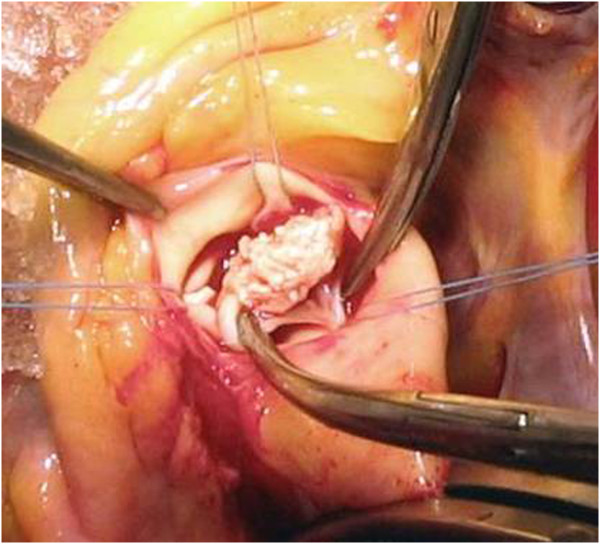Intraoperative vegetation findings on the aortic valve