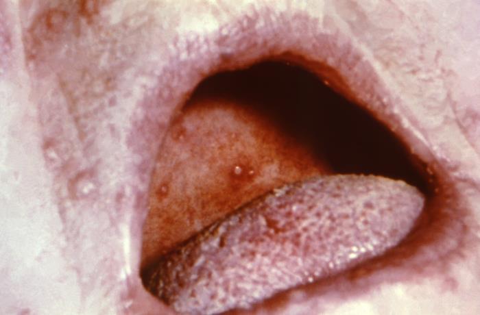 Intraoral view of maculopapular vesicles smallpox Orthopoxviridae