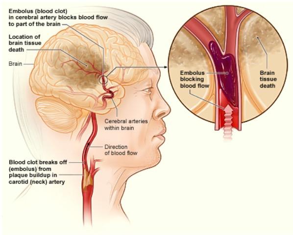 Ischemic stroke in the brain
