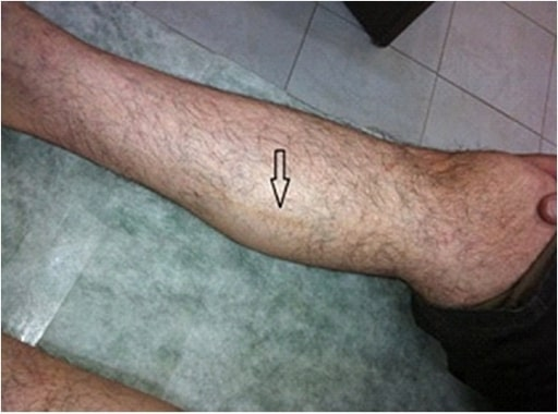 Thromboangiitis Obliterans (Buerger's Disease)
