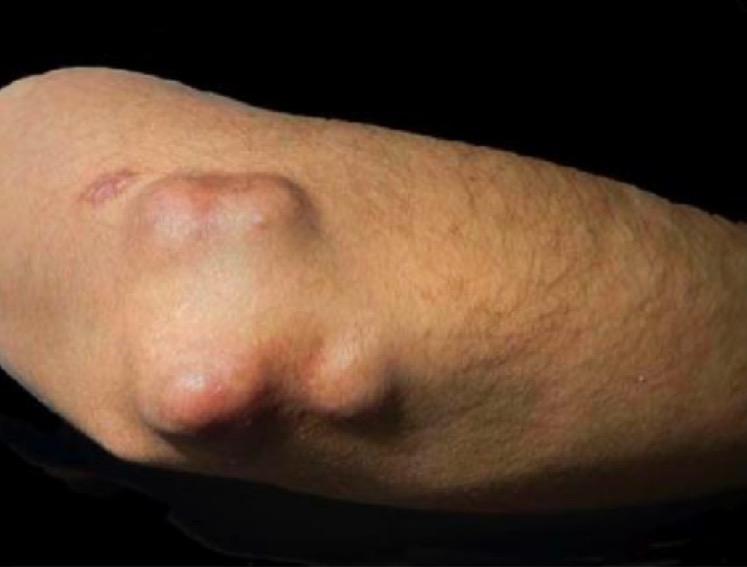 Isolated rheumatoid nodules