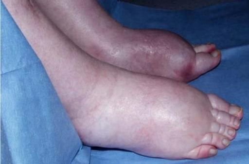 Itraconazole associated quadriparesis and edema