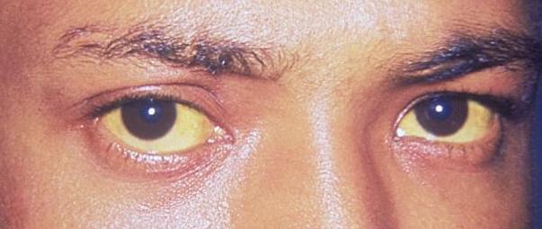 Jaundice eye