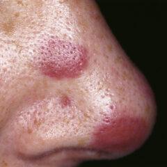 Kaposi's sarcoma nose