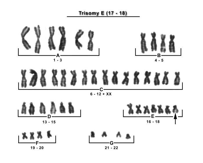Karyotype trisomy 18