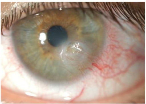 Keratoconjunctivitis sicca with a corneal ulceration in a patient with Sjögren syndrome
