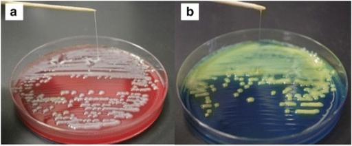 Klebsiella mucoid colonies