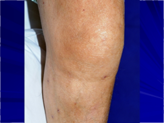 Knee swelling and mild erythema in a patient with septic arthritis