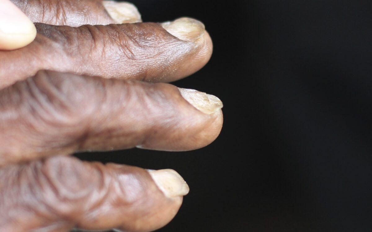 Koilonychia (spooning of the nails) Iron deficiency anemia