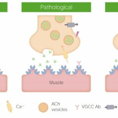 Lambert-Eaton Myasthenic Syndrome pathophysiology