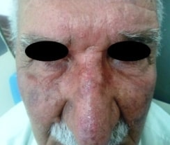 Large actinic keratoses on the nose