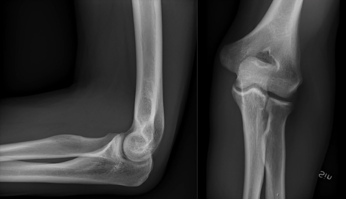 Lateral (left) and AP (right) projections of a normal elbow