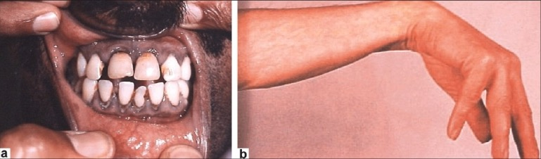Lead line in gingiva - metal poisoning