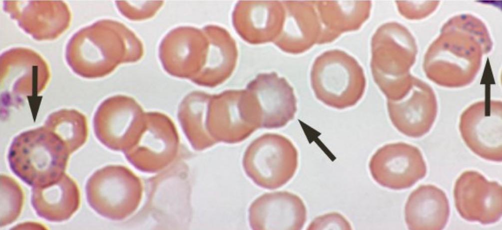Lead poisoning - blood film