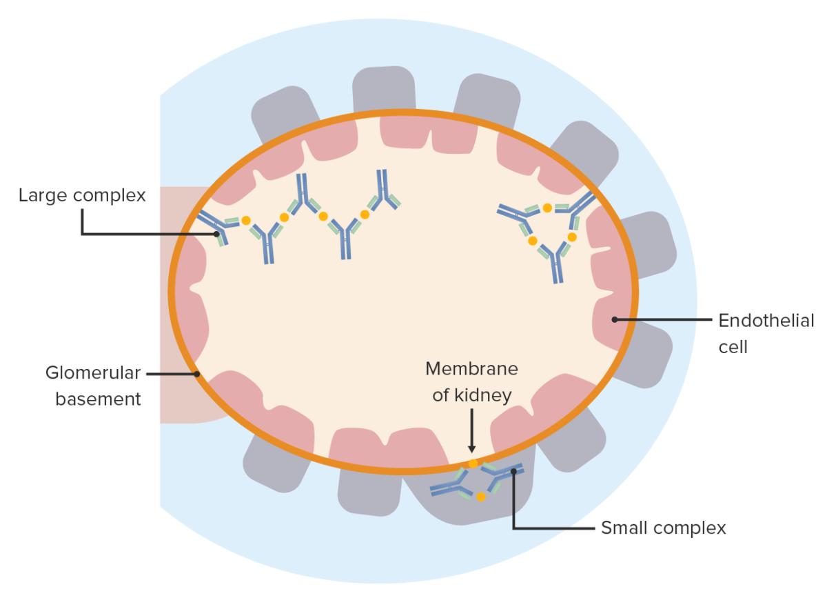 Immune Complex Disease Hypersensitivity III