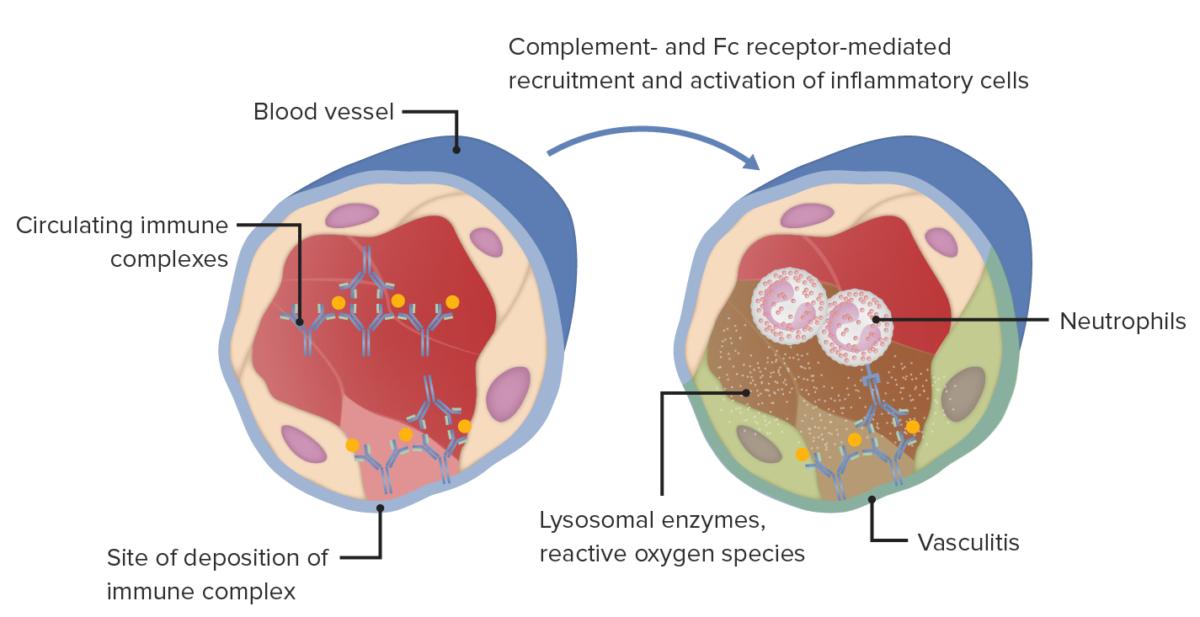 Type III hypersensitivity immune complex mediated tissue injury