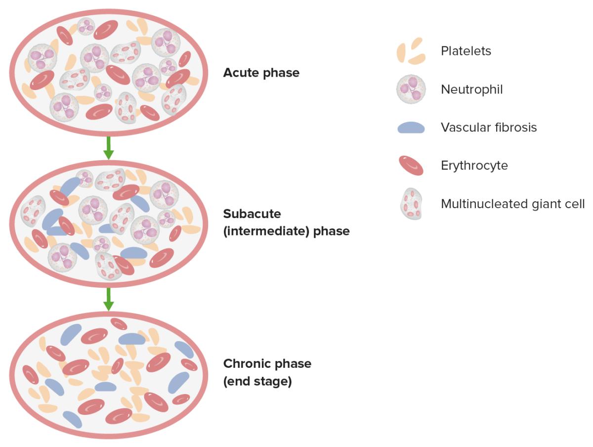 3 pathologic phases in thromboangiitis obliterans