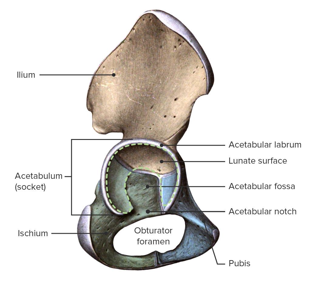Hip Bone with acetabulum and acetabular labrum