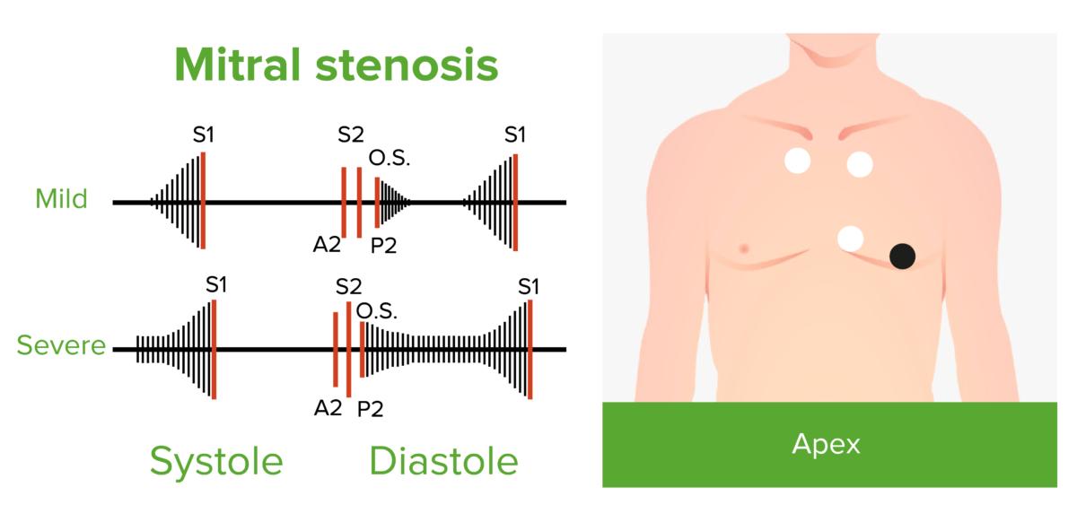 Mitral stenosis phonocardiogram