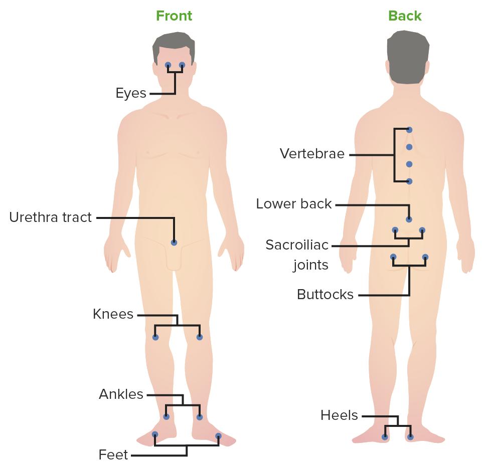 Common inflammatory sites in reactive arthritis