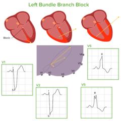 Left bundle branch block pathophysiology
