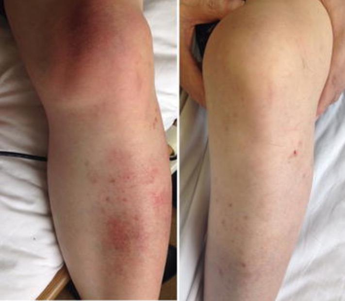 Left lower leg and knee cellulitis