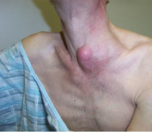 Left supraclavicular abscessed lymph node