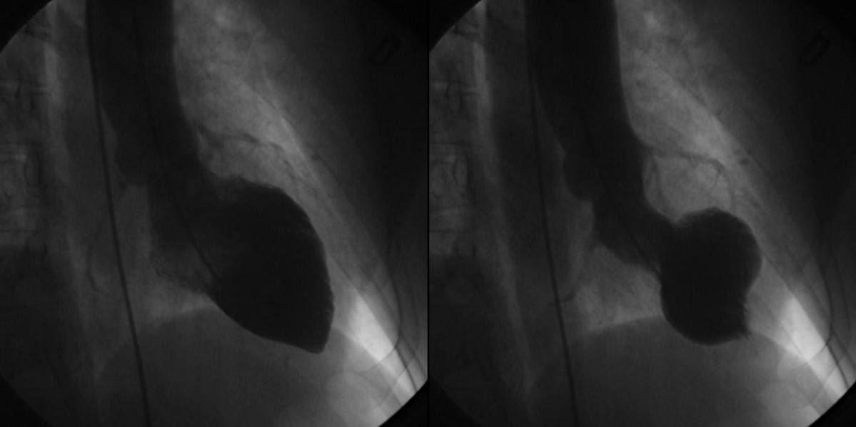 Left ventriculograms