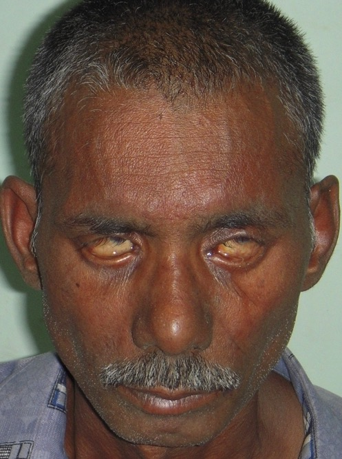 Leprosy patient unable to close eyes