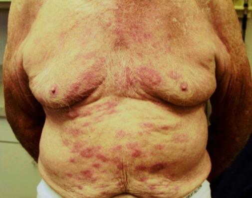 Leprosy rash on trunk