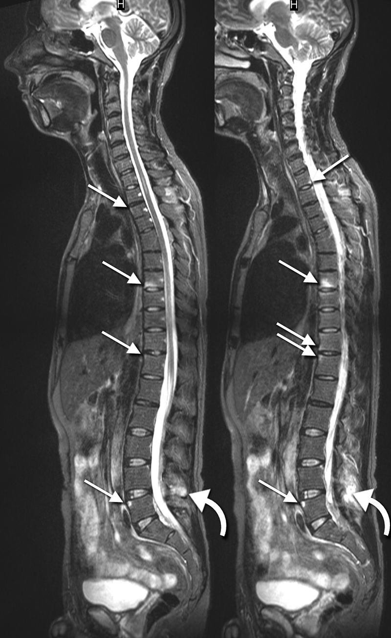 Lesions in the thoracic and lumbar spine