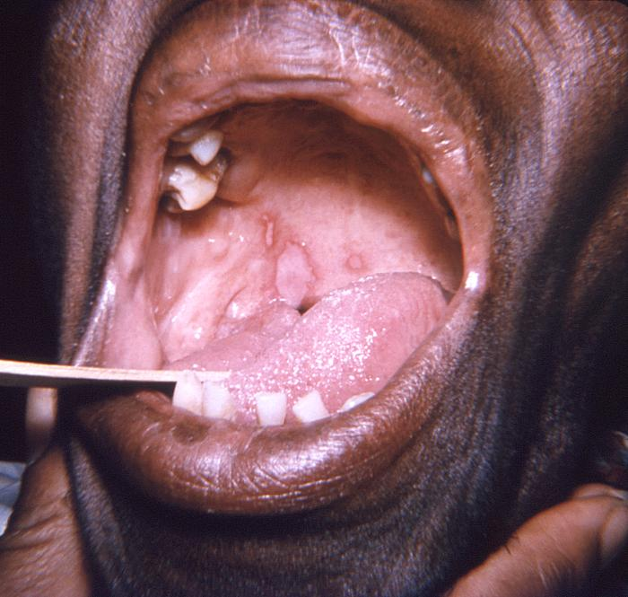 Lesions on the soft palate and tongue herpes simplex virus
