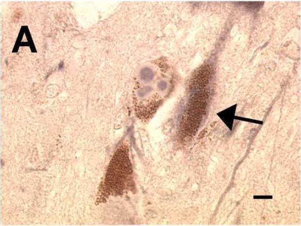 Lewy bodies confirming Parkinson's disease