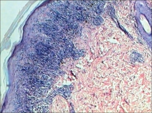 Lichen planus H and E stain