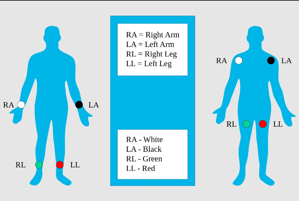 Limb leads, standard placement of the limb leads for electrocardiography