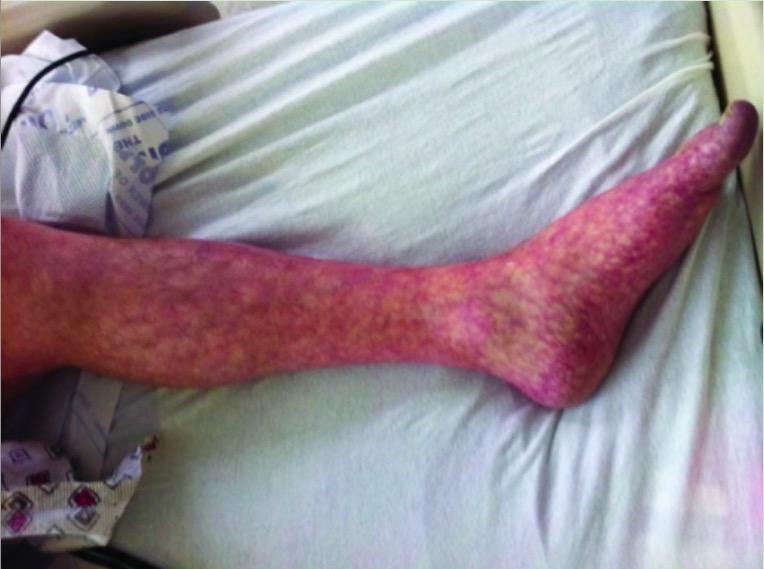 Livedo reticularis of left leg