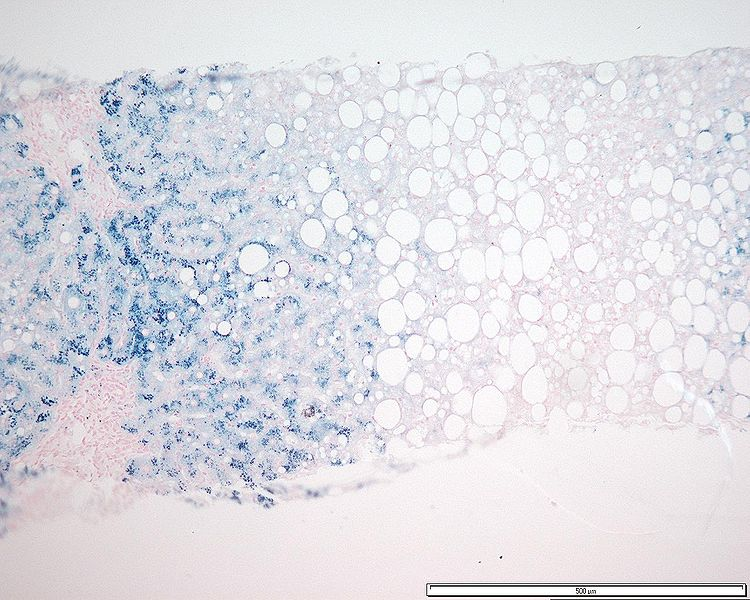 Liver biopsy for iron hemochromatosis