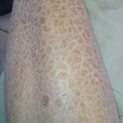 Lizard skin appearance of ichthyosis