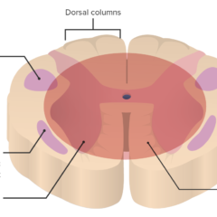 Location of lesion in central cord syndrome