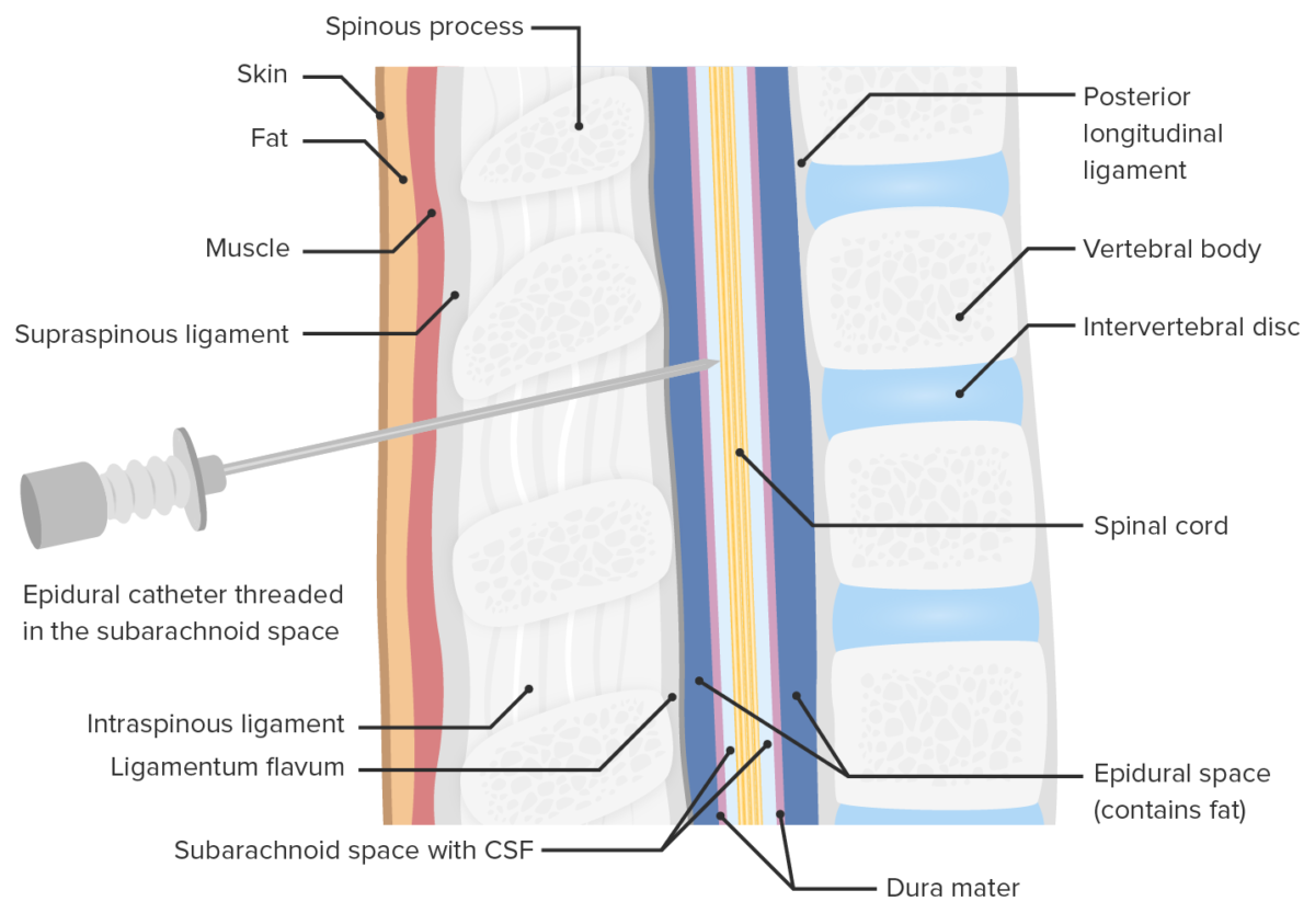 Location of opioid injection during spinal anesthesia