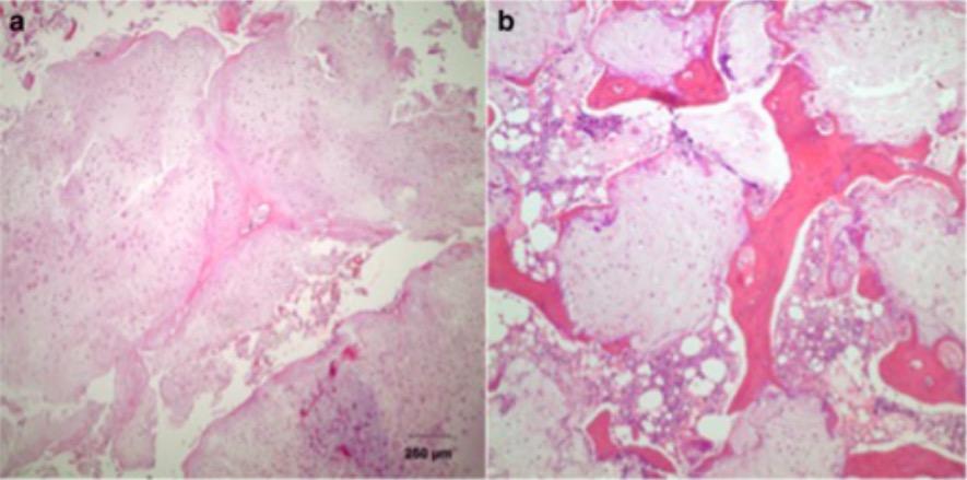 Low-grade chondrosarcoma