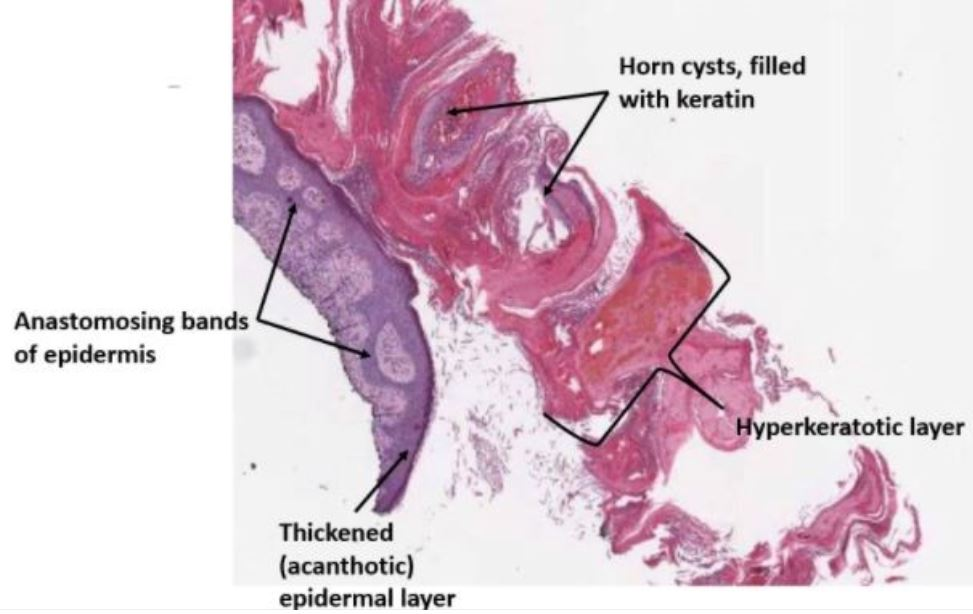 Low-power microphotograph of a shave biopsy of a hyperkeratotic seborrheic keratosis