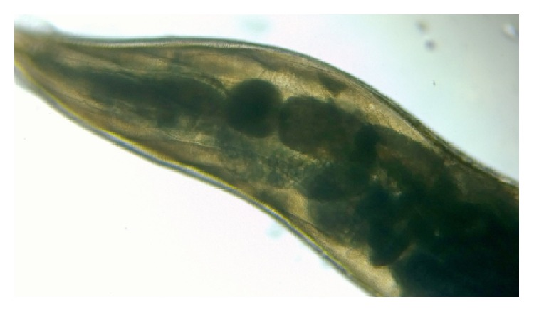 Low-power microscopic view of Enterobius vermicularis Toxocariasis