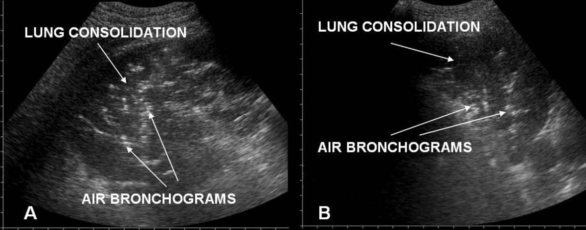 Lung consolidations with air bronchograms in posterior lung fields in ARDS